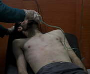 A man receives treatment following an alleged Jan. 13 poison gas attack by Syrian government forces in the rebel-held city of Daraya. U.S. State Department officials reportedly offered a muted response to claims about the incident.